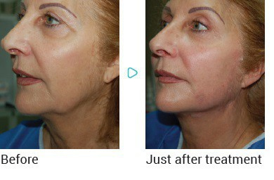 The Lunchtime Facelift – Morley Aesthetics